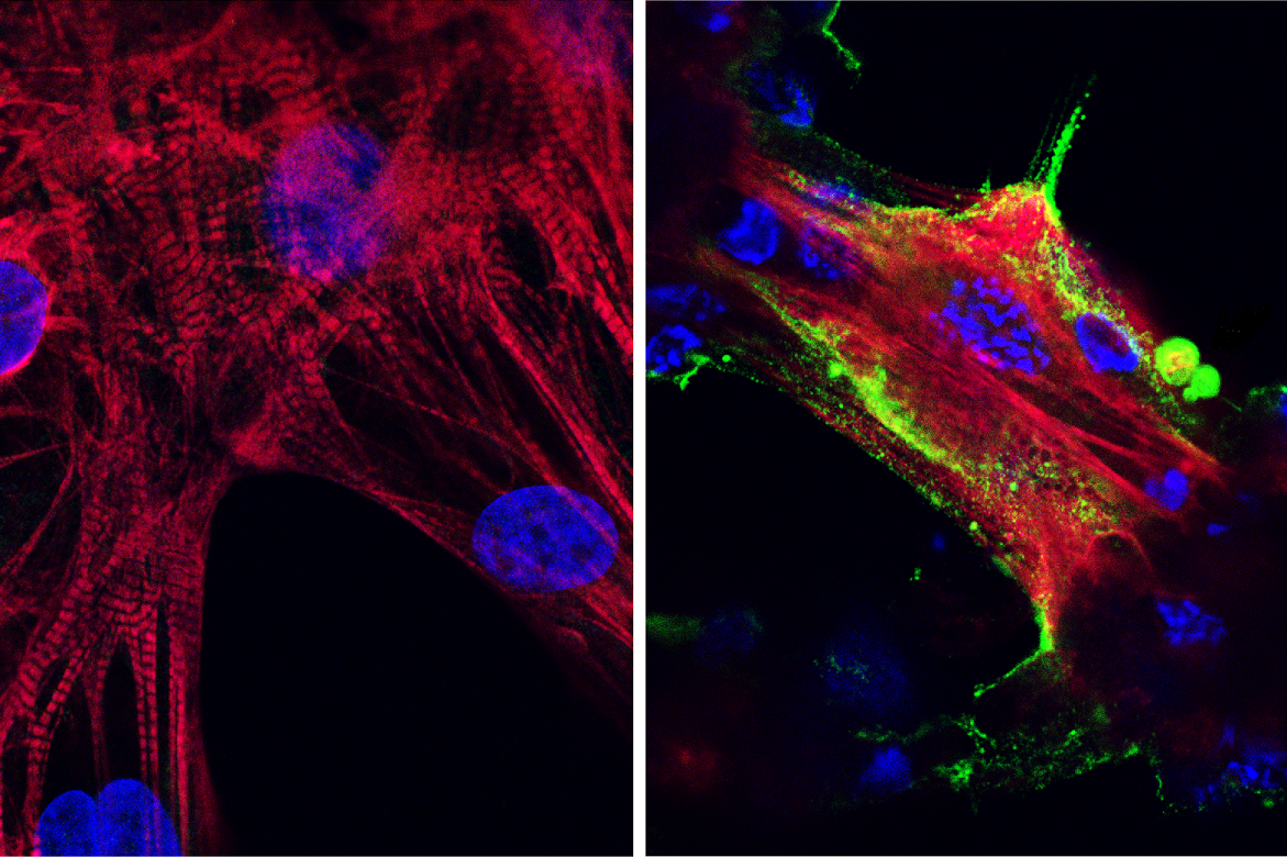 Covid in heart muscle: Microscope images showing (left) healthy heart muscle cells and (right) heart muscle cells that have been infected and damaged by the SARS-CoV-2 virus (in green). Credit: UCLA Broad Stem Cell Research Center/JCI Insight